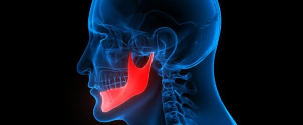 jaw pain xray with jaw highlighted in red